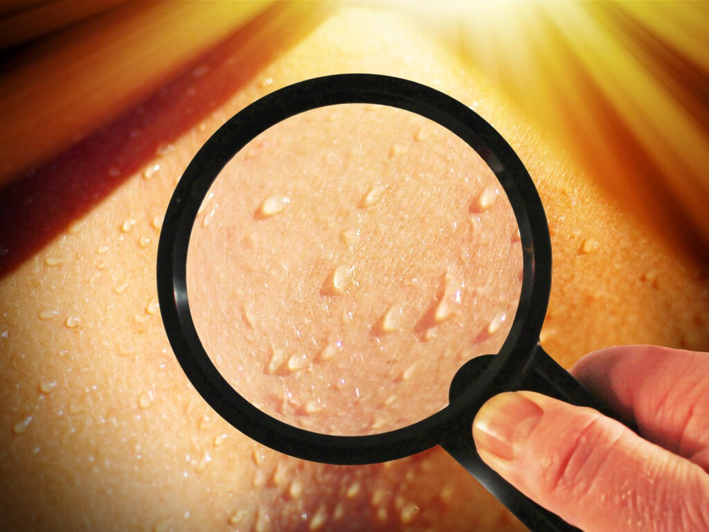 Hautleitwert Biofeedback